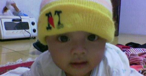 Gambar Bayi Asfiksia  Gambar C