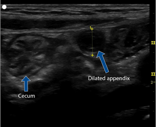 Evaluation of Acute Appendicitis by Pediatric Emergency Physician Sonography – SonoSim