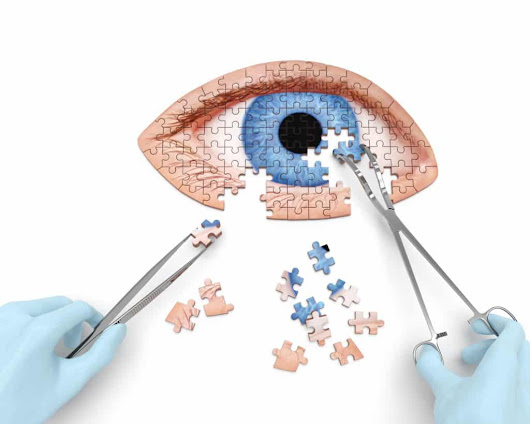 Demystifying cataract surgery - Good Vision For Life
