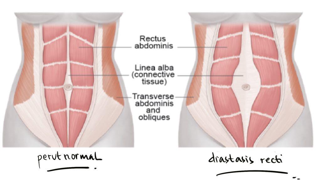 Jika perut Anda tidak kunjung mengecil seperti semula setelah si kecil lahir bahkan setela Diastasis Recti? Apa Itu?