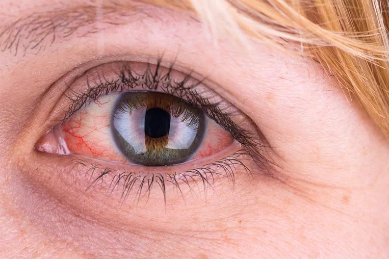 Olhos vermelhos: o que pode ser e quando devo me preocupar