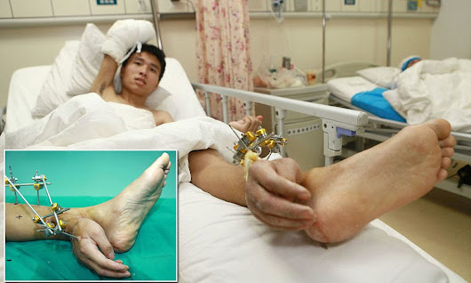 Man whose hand was severed has it attached to his ANKLE for a month to keep it alive before being reattached