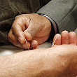 Acupuncture - Wikipedia, the free encyclopedia