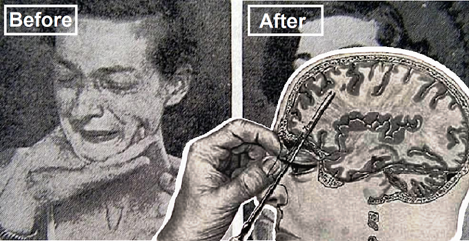 These 16 Before And After Photos of People from Horror of the Lobotomy