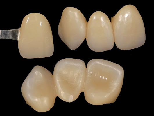 Get the Most out of Monolithic Zirconia Shading - A Webinar