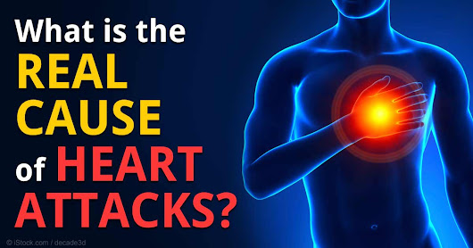 What's the Real Cause of Heart Attacks?
