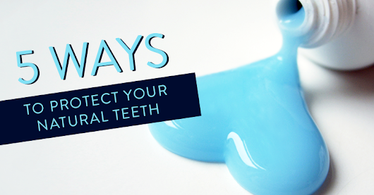 5 Ways To Protect Your Natural Teeth