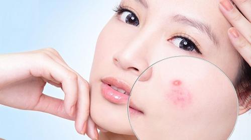 Học 25 cách chăm sóc da: làm trắng da và trị mụn tại nhà