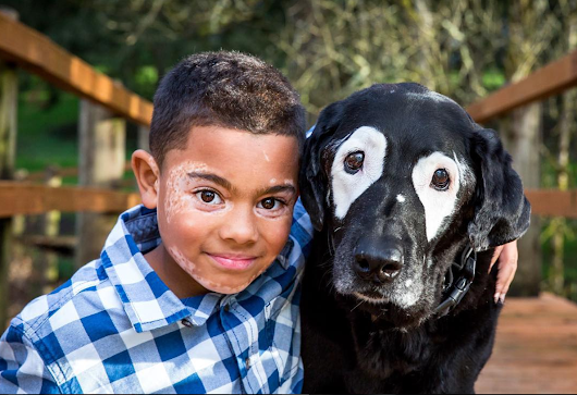 An 8-Year-Old Boy and Dog Bond Over the Same Skin Condition