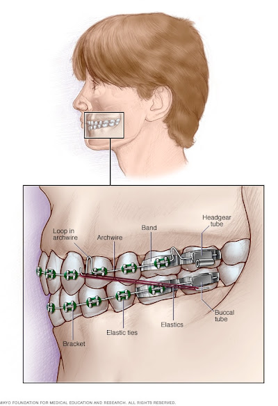 What you can expect - Dental braces - Mayo Clinic