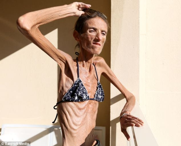 She says she wants to share her story to prevent other people falling victim to the same fate, saying anorexia has made her 'lonely, unattractive and repulsive for the people around me'