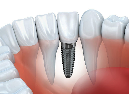 Recovering from Dental Implant Surgery • West Cobb Dentistry 770-794-3332