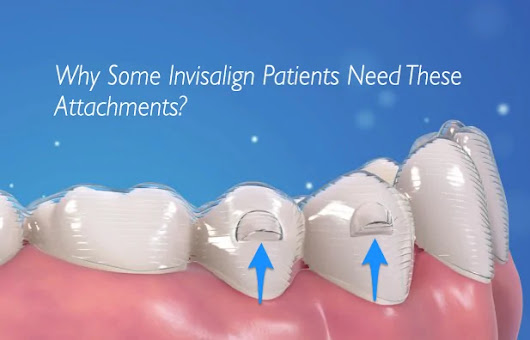 Find Out Why Some Invisalign Users Need Attachments