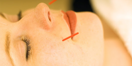 Tried And Tested: How Scary Is Facial Acupuncture?