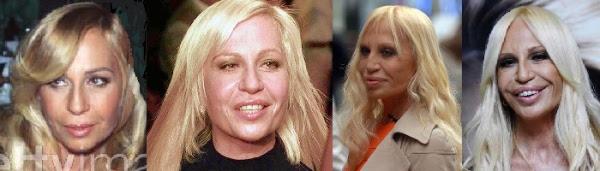 Disastres de cirurgia plástica de celebridades - Donatella Versace