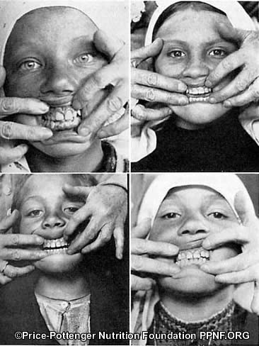 Isolated Swiss Children No Tooth Decay