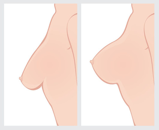 Fairfield, CT Breast Lift Surgery Candidates - Body Contouring and Enhancement