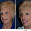 Should you get a minituck or a full facelift?