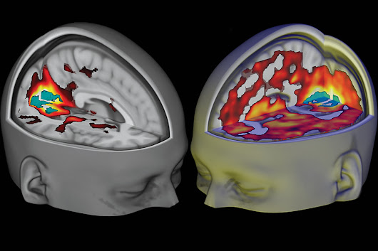 Psychedelic drugs push the brain to a state never seen before