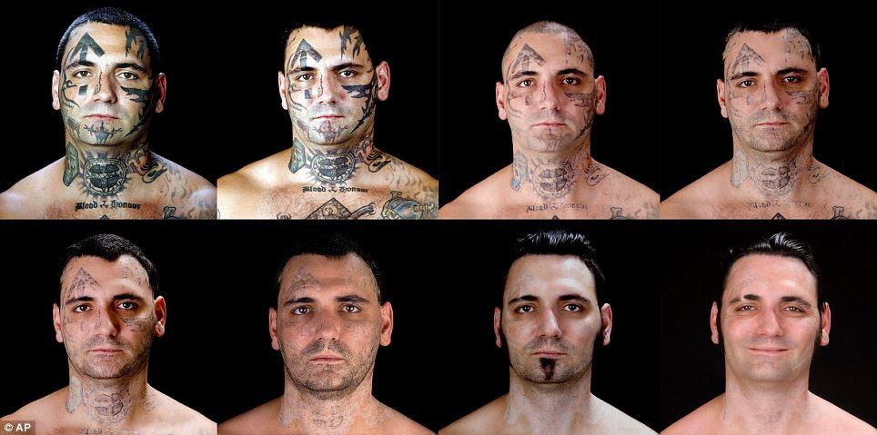 Panjang, proses yang perlahan: Byron Widner ditentukan untuk memadam jejak masa lalu skinhead beliau dengan membuang semua tatu wajah bahawa dia telah terkumpul