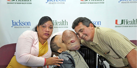 10-pound tumor: Florida doctors to remove growth from boy's face