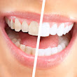 Over the Counter Teeth Whiteners Vs Professional Treatments