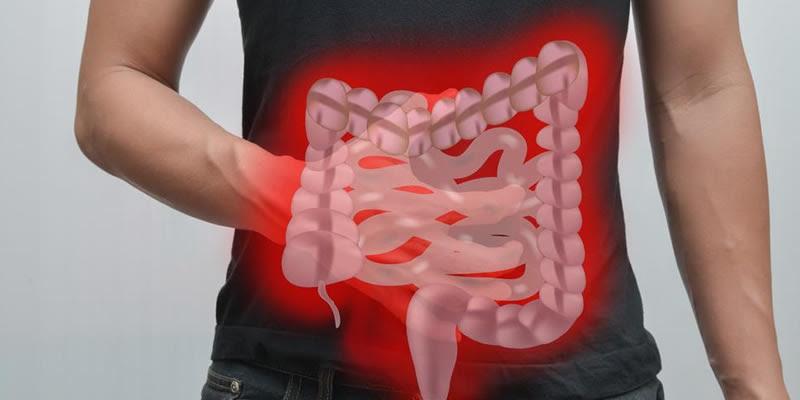 Pólipo Colorretal - O que é, Sintomas e Tratamentos ...