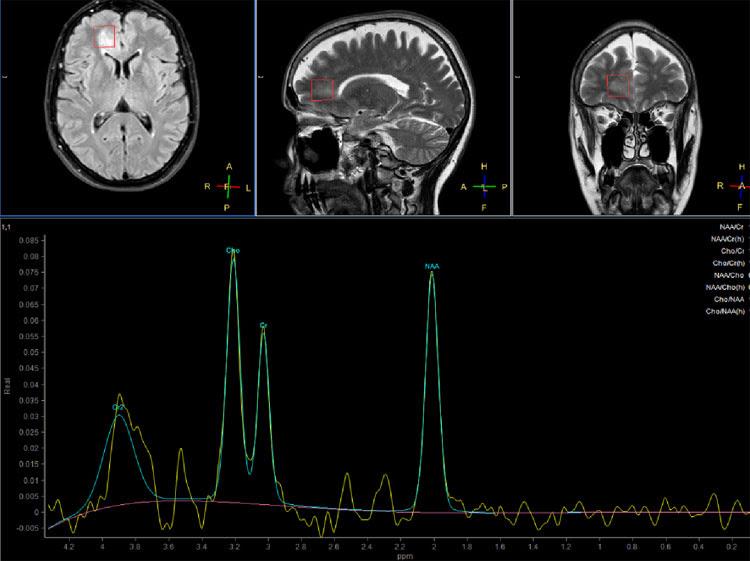 Risultati immagini per Spettroscopia