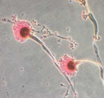 Microscopic view of Aspergillus