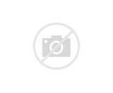How Is The Brachial Plexus Injury