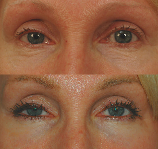 Los Angeles Fractional Laser Resurfacing For The Eyes