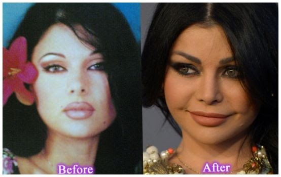 Haifa Wehbe Plastic Surgery Before And After Photos
