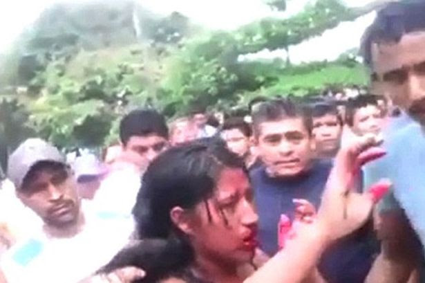 A horrifying video shows the teenager bleeding as she is surrounded by the mob