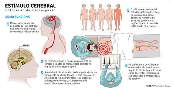 aIfwiol Vídeo impressionante: paciente liga e desliga doença de Parkinson