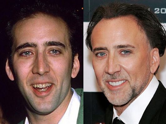 5 Celebrities Before & After Dental Care