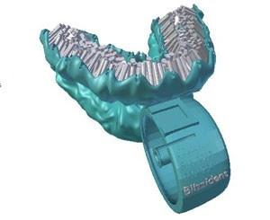 Escova feita em impressora 3D promete escovar os dentes em seis segundos (Foto: Divulgação/Blizzdent)