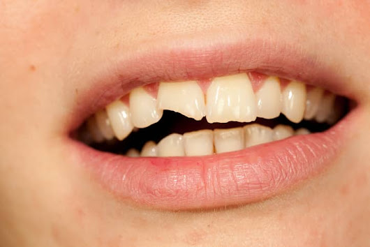 Should I Get My Chipped Tooth Fixed? Dental Bonding In Michigan