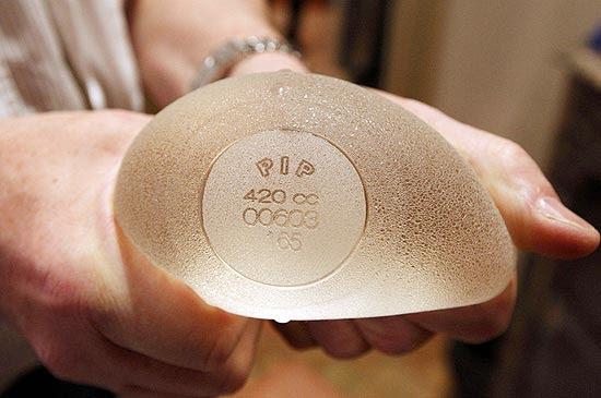 As próteses da extinta marca PIP foram feitas com silicone industrial, em vez de silicone cirúrgico