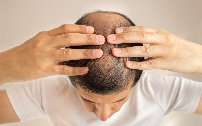 Dutasteride Il Farmaco Contro L Alopecia Androgenetica Guida Benessere