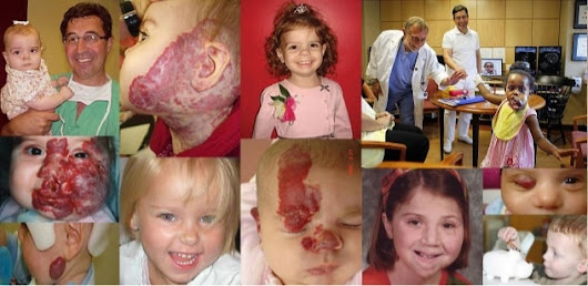 Vascular Birthmark Institute of New York | Hemangiomas, Vascular Malformations