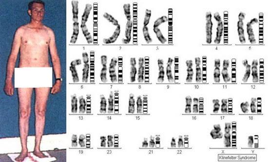 South Pontotoc Biology Unit 11 Inheritance Patterns Of Human Traits-3158
