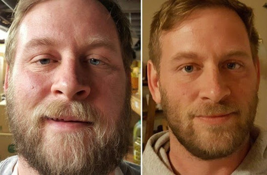 6 Before-And-After Pics That Show How People Change When They Stop Consuming Alcohol | World inside pictures