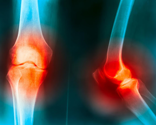 Osteoarthritis: Knee joint degeneration slowed with weight loss, study confirms