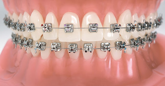 Orthodontic Treatment in Race Course| Clip Treatment in Coimbatore