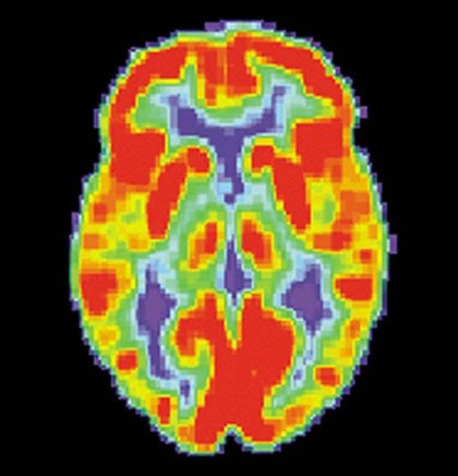 Neuroimaging Study Pinpoints Neurobiological Basis for Key ...