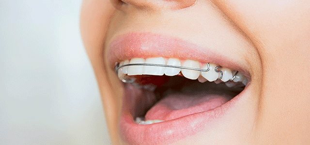 Your Teens Retainer Why Wear It And How To Care For It