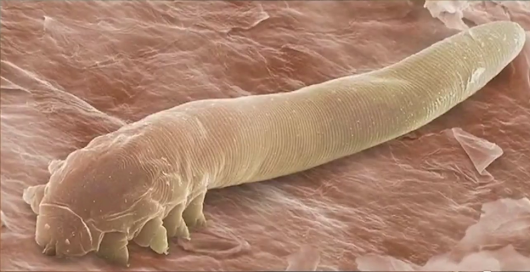 Eye mites: Millions of people have them and don't know it