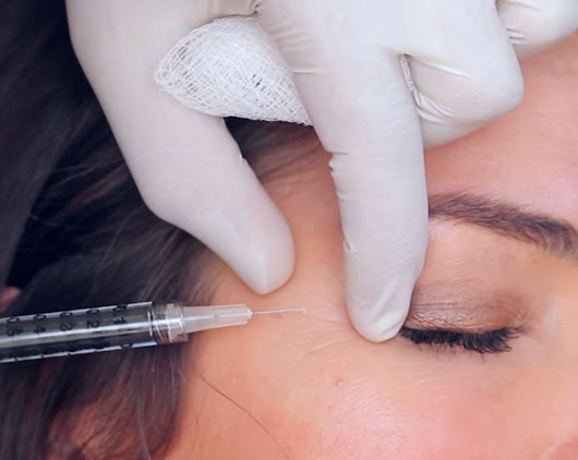 Does Botox Really Prevent Wrinkles? When Is the Right Time to Start? | Glamour