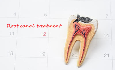 How Endodontics Can Save Your Infected Tooth