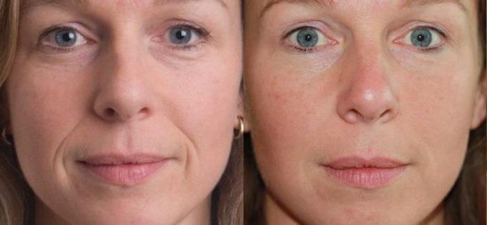 плазмолифтинг головы фото до и после
